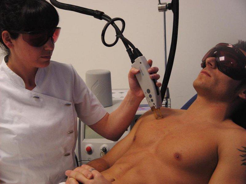 Depilacion laser masculina