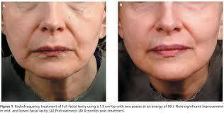 radiofrecuencia facial antes y despues