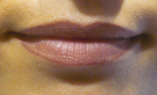 labios despues