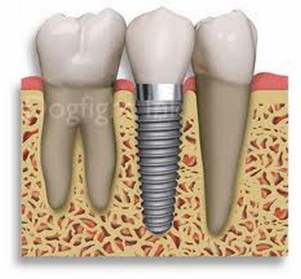 Clínica Dental  Tu dentista en Benimaclet, Valencia. Implantologia, implantes