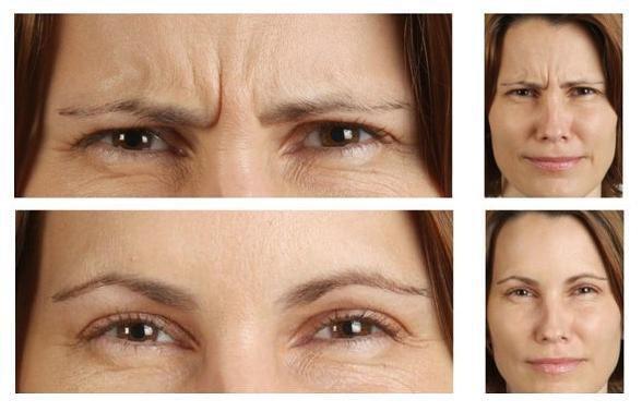 Botox entrecejo