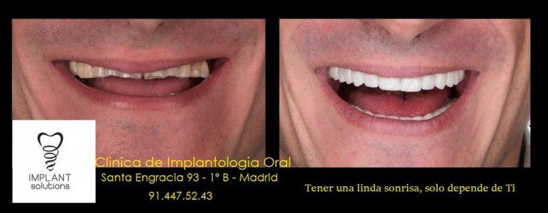 Clínica Implantología Oral