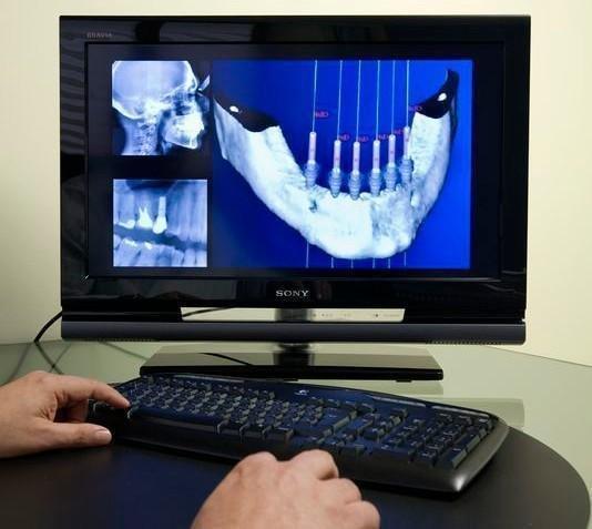Tecnologia punta en Implantes