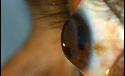 lentes queratocono