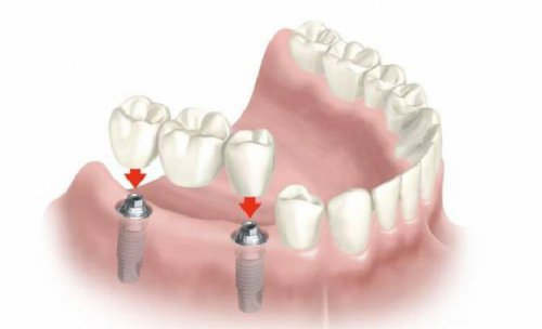 Clínica Dental Gálvez, dentistas en Murcia