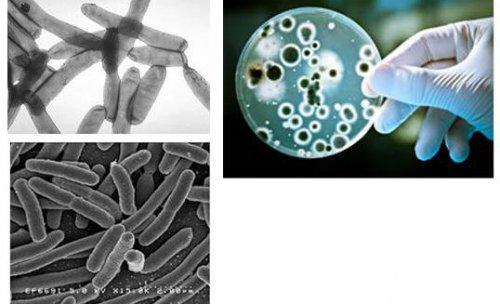 Bioprotect, control de plagas en Málaga