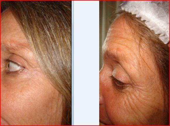 rejuvenecimiento facial , Botox
