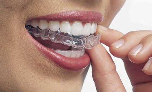 Clínica Dental Novadent Torrent