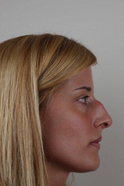 Rinoplastia antes y des´pues