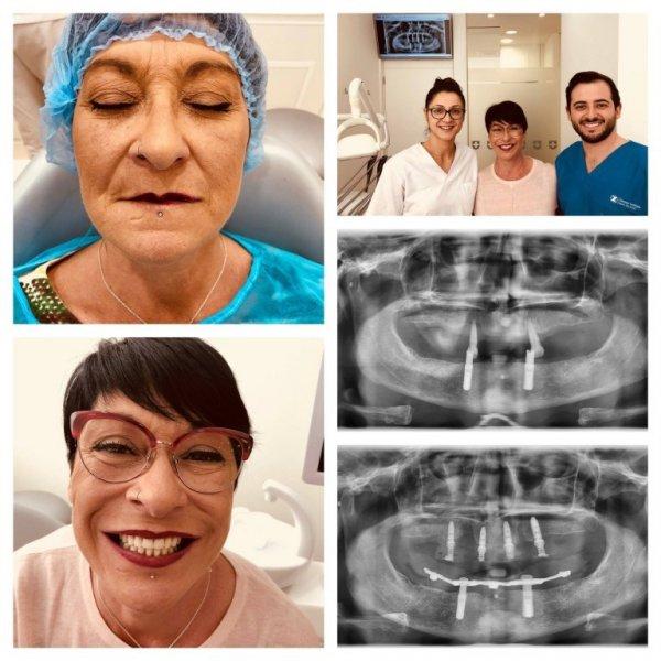 Implantclinics