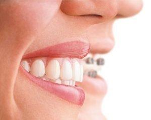 Dental Master RJ