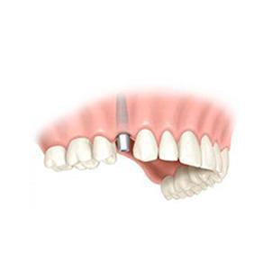 Sonrisas 10 Tarragona, dentistas en Tarragona