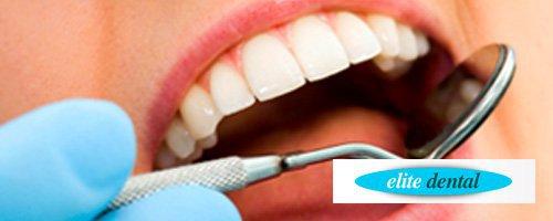 Elite Dental Fuenlabrada