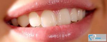 Protésico Dental Aitor Zorzabalbere
