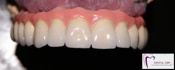 Laboratorio Protésico Dental Ort